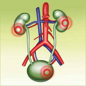 Химиотерапия при 4 стадии рака предстательной железы